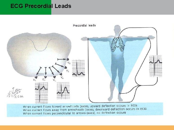 ECG Precordial Leads