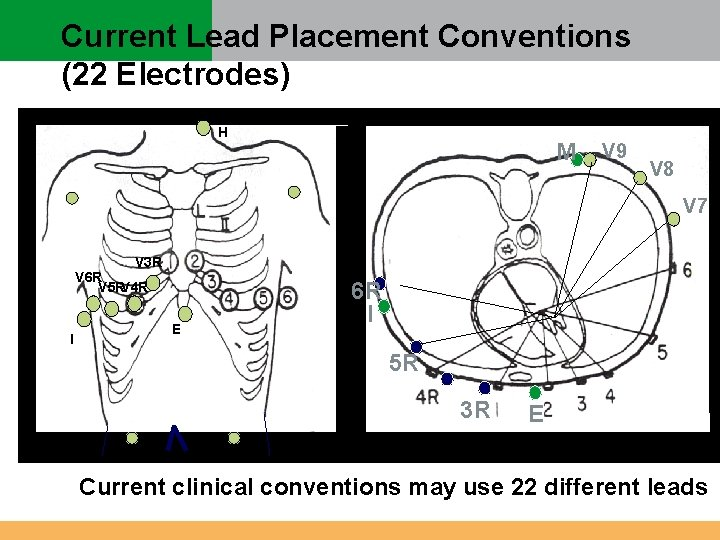 Current Lead Placement Conventions (22 Electrodes) H M V 9 V 8 V 7