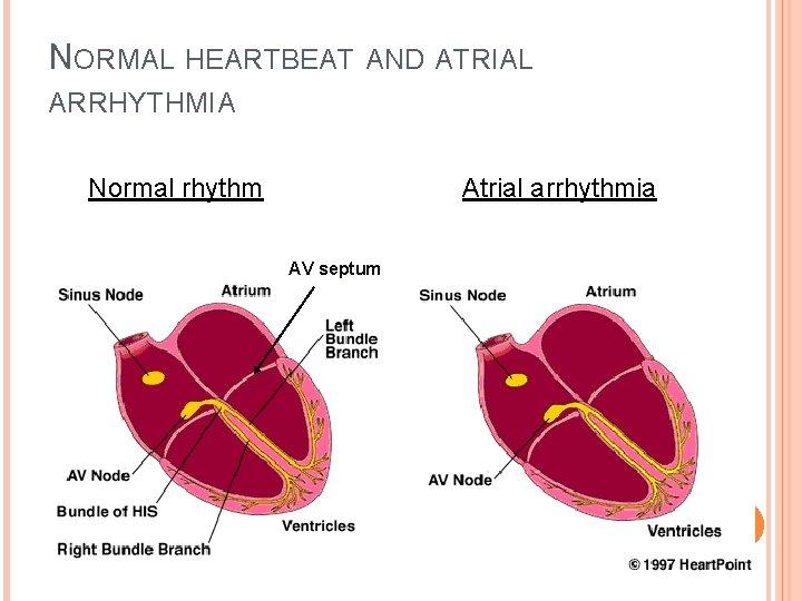 NORMAL HEARTBEAT AND ATRIAL ARRHYTHMIA Normal rhythm Atrial arrhythmia AV septum