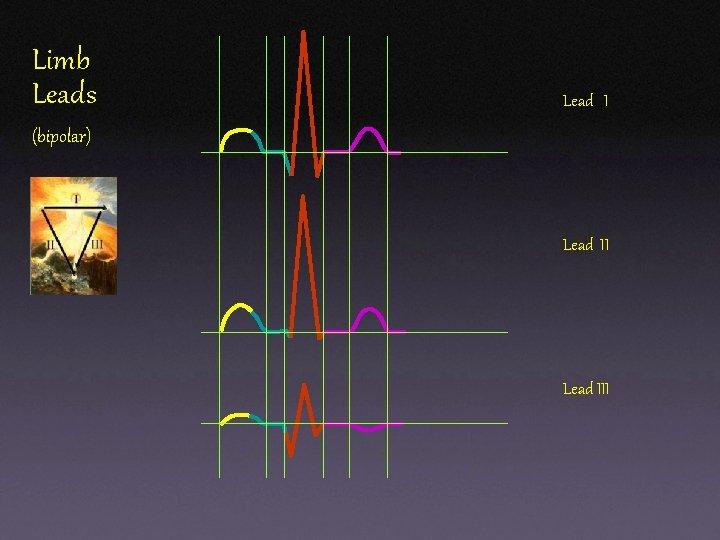 Limb Leads Lead I (bipolar) Lead III