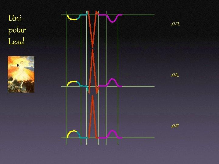 Unipolar Lead a. VR a. VL a. VF