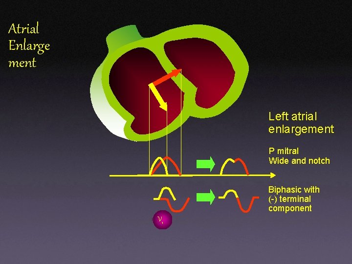 Atrial Enlarge ment Left atrial enlargement P mitral Wide and notch Biphasic with (-)
