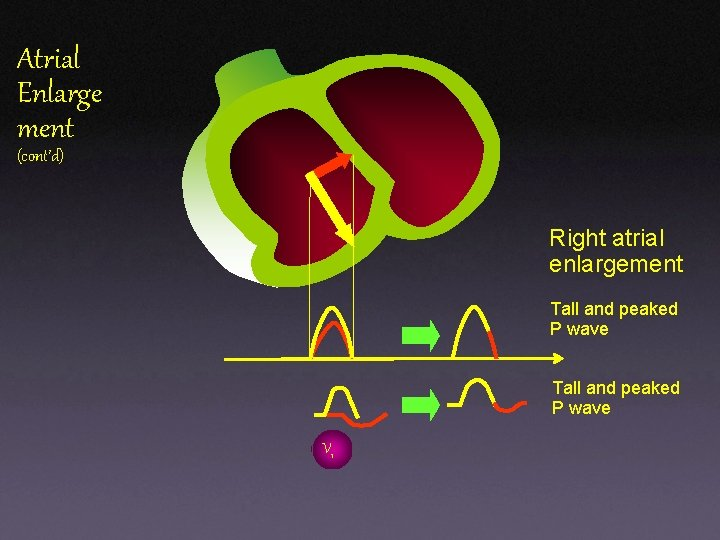Atrial Enlarge ment (cont'd) Right atrial enlargement Tall and peaked P wave V 1