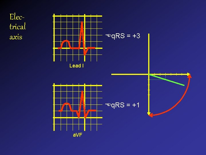 Electrical axis q. RS = +3 Lead I q. RS = +1 a. VF