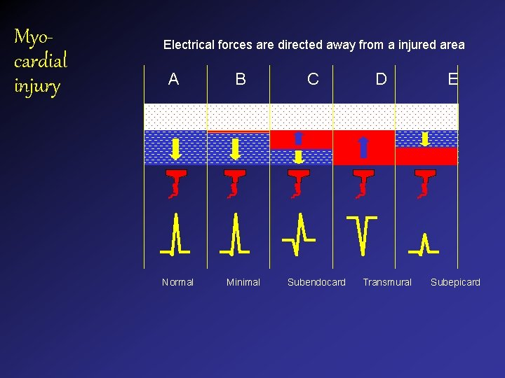 Myocardial injury Electrical forces are directed away from a injured area A Normal B