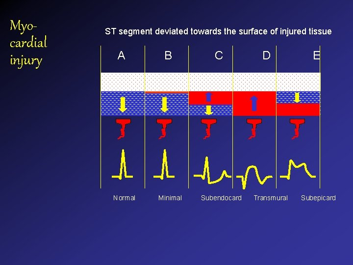 Myocardial injury ST segment deviated towards the surface of injured tissue A Normal B