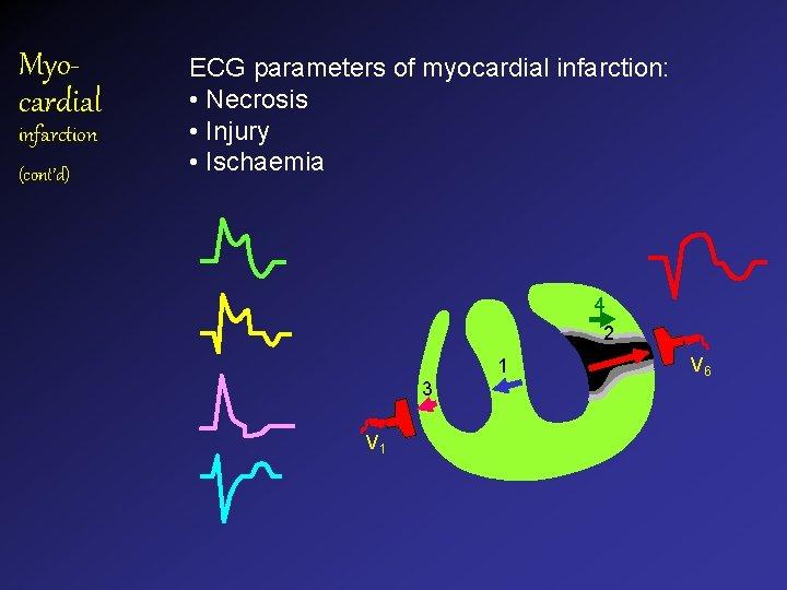 Myocardial infarction (cont'd) ECG parameters of myocardial infarction: • Necrosis • Injury • Ischaemia