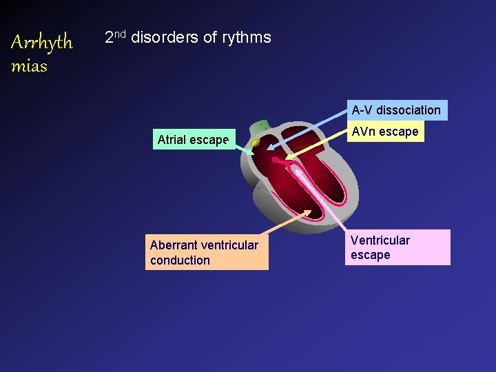 Arrhyth mias 2 nd disorders of rythms A-V dissociation Atrial escape Aberrant ventricular conduction