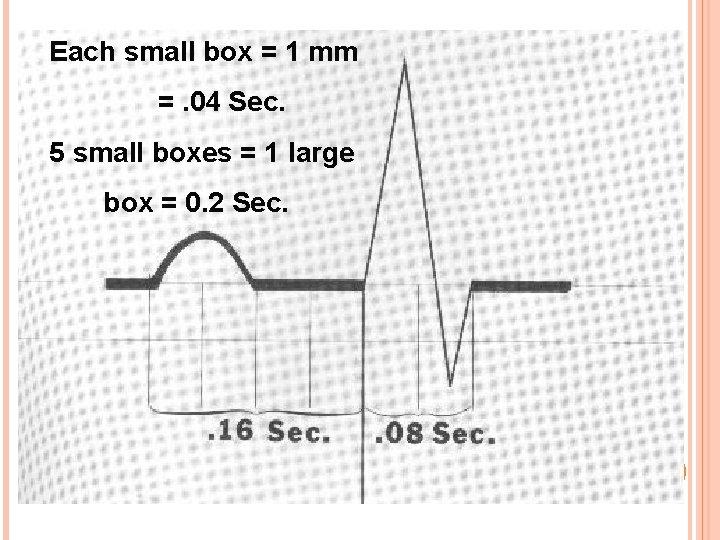 Each small box = 1 mm =. 04 Sec. 5 small boxes = 1