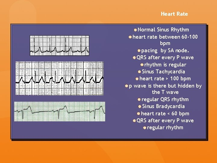 Heart Rate Normal Sinus Rhythm heart rate between 60 -100 bpm pacing by SA