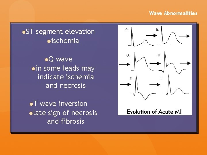 Wave Abnormalities ST segment elevation ischemia Q wave in some leads may indicate ischemia