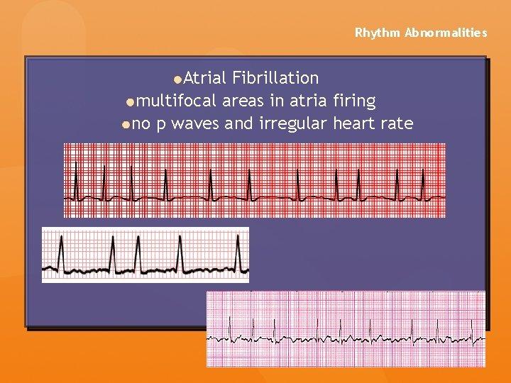 Rhythm Abnormalities Atrial Fibrillation multifocal areas in atria firing no p waves and irregular