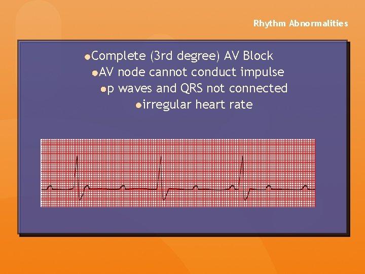 Rhythm Abnormalities Complete (3 rd degree) AV Block AV node cannot conduct impulse p