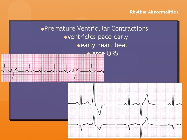 Rhythm Abnormalities Premature Ventricular Contractions ventricles pace early heart beat large QRS