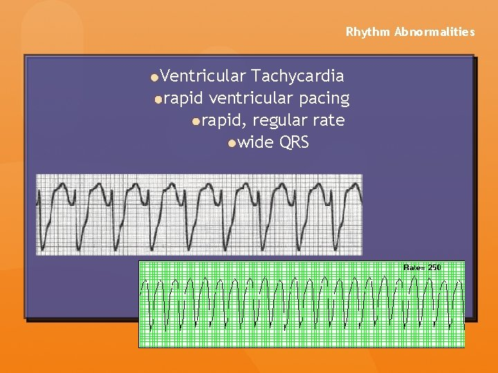 Rhythm Abnormalities Ventricular Tachycardia rapid ventricular pacing rapid, regular rate wide QRS