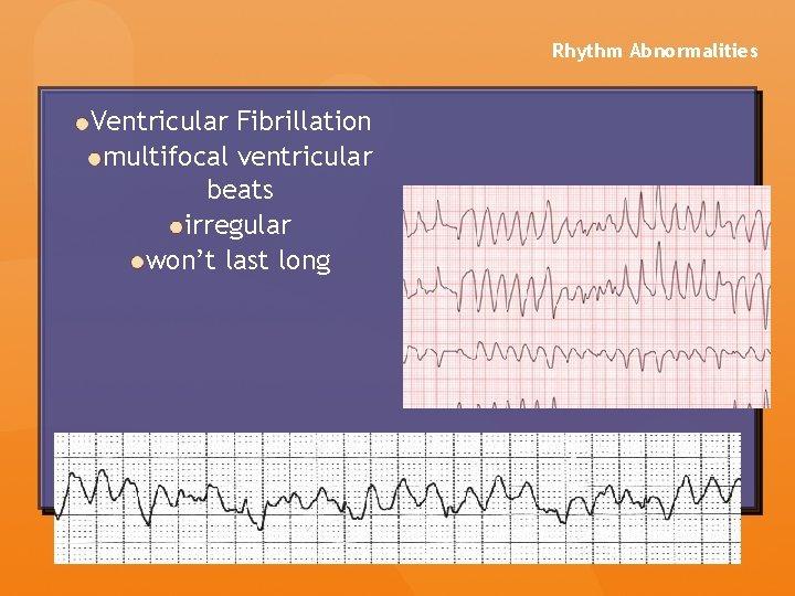 Rhythm Abnormalities Ventricular Fibrillation multifocal ventricular beats irregular won't last long