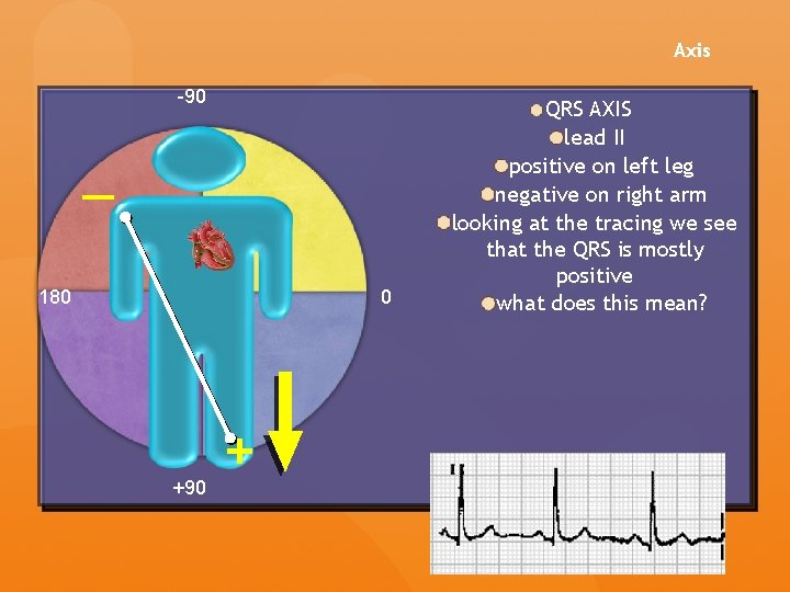 Axis -90 — 180 0 +90 + QRS AXIS lead II positive on left