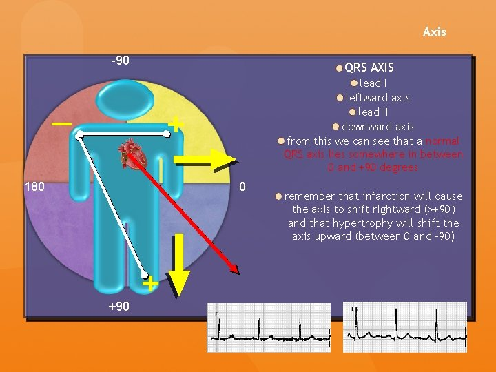 Axis -90 QRS AXIS lead I leftward axis lead II downward axis from this