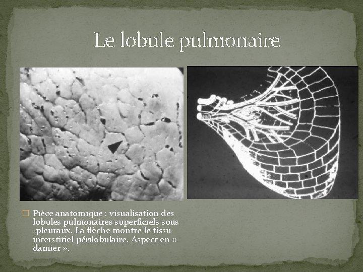 Le lobule pulmonaire � Pièce anatomique : visualisation des lobules pulmonaires superficiels sous