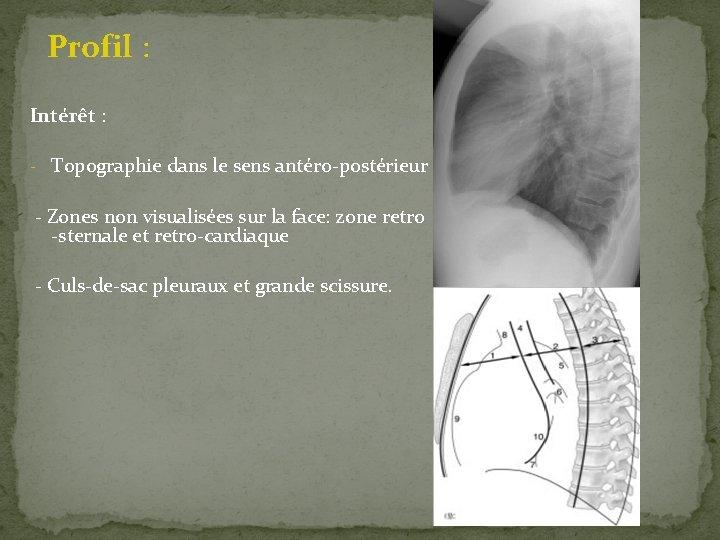 Profil : Intérêt : - Topographie dans le sens antéro-postérieur - Zones non