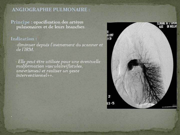ANGIOGRAPHIE PULMONAIRE : Principe : opacification des artères pulmonaires et de leurs branches.