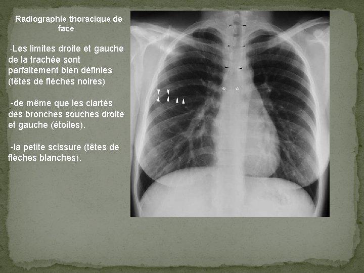 -Radiographie thoracique de face: -Les limites droite et gauche de la trachée sont parfaitement