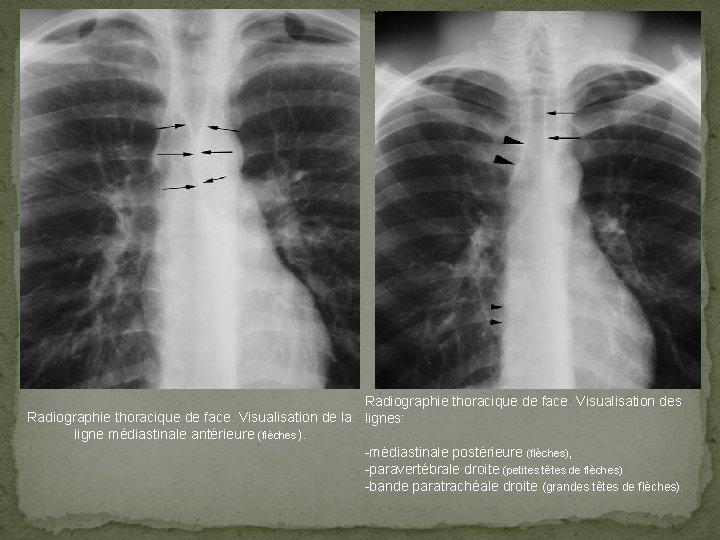 Radiographie thoracique de face. Visualisation des Radiographie thoracique de face. Visualisation de la lignes: