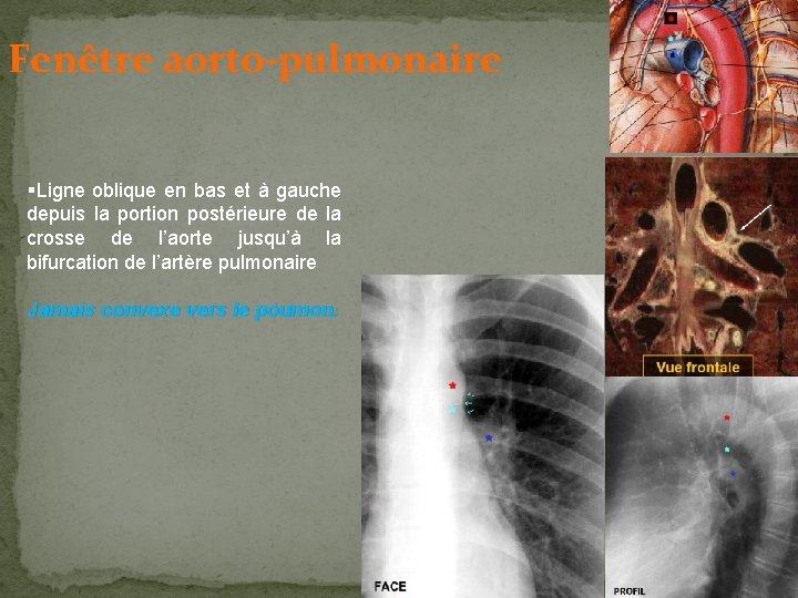 Fenêtre aorto-pulmonaire §Ligne oblique en bas et à gauche depuis la portion postérieure de