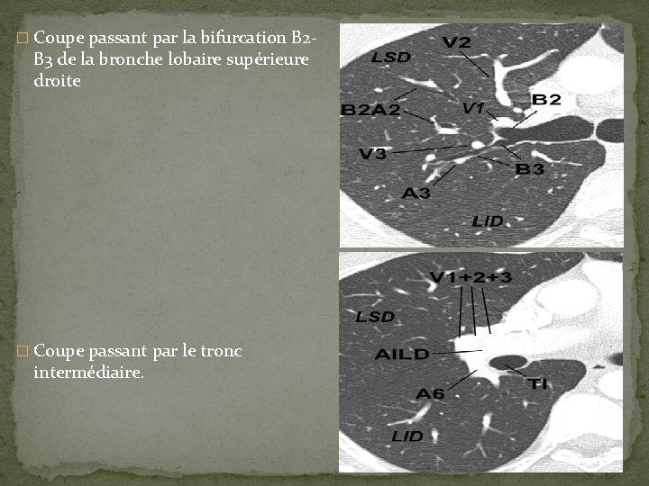 � Coupe passant par la bifurcation B 2 - B 3 de la bronche