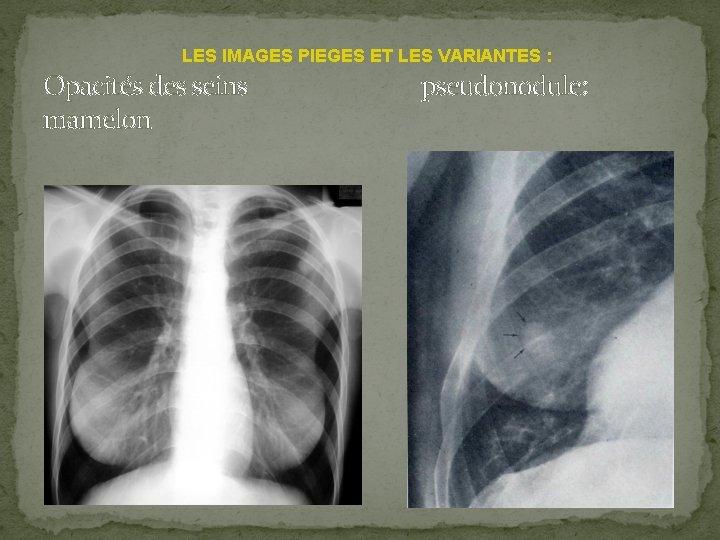 LES IMAGES PIEGES ET LES VARIANTES : Opacités des seins pseudonodule: mamelon