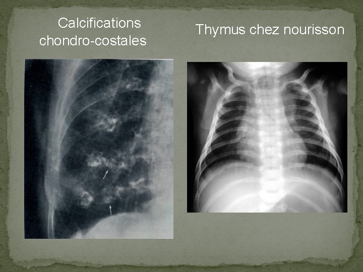 Calcifications chondro-costales Thymus chez nourisson