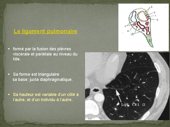 Le ligament pulmonaire § formé par la fusion des plèvres viscérale et pariétale au