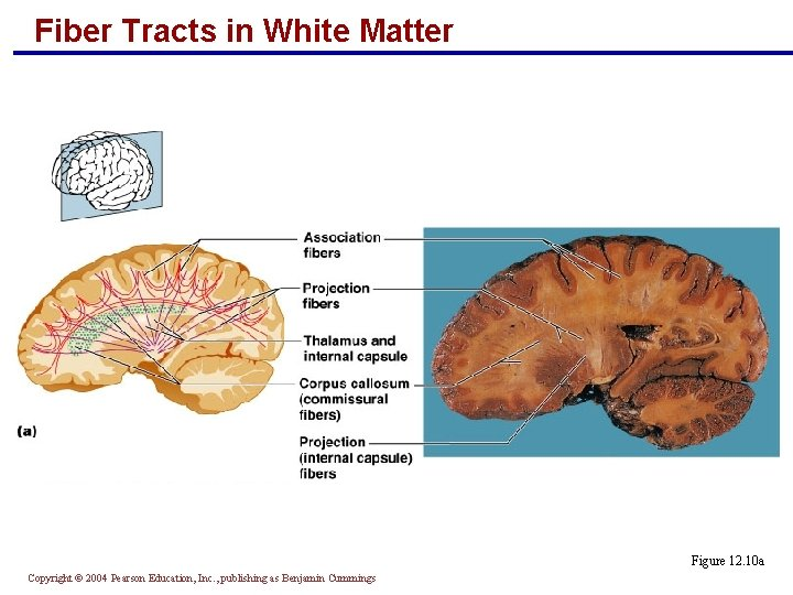 Fiber Tracts in White Matter Figure 12. 10 a Copyright © 2004 Pearson Education,