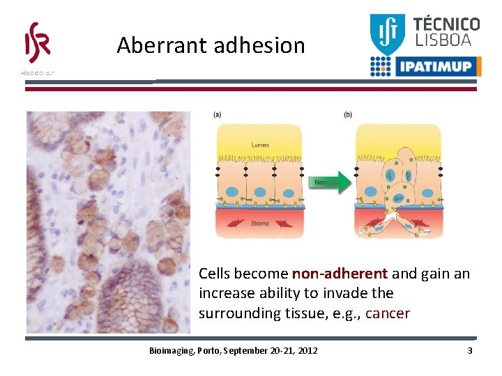 Aberrant adhesion • Cells become non-adherent and gain an increase ability to invade the