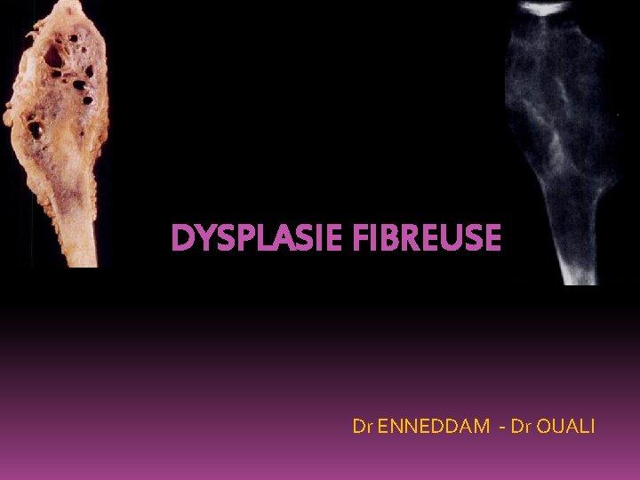 DYSPLASIE FIBREUSE Dr ENNEDDAM - Dr OUALI