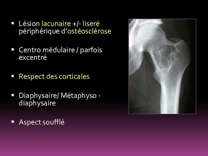 Lésion lacunaire +/- liseré périphérique d'ostéosclérose Centro médulaire / parfois excentré Respect des