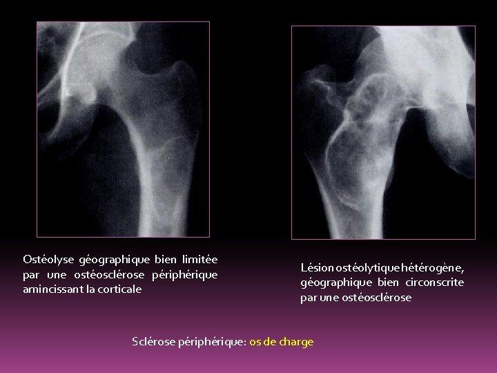 Ostéolyse géographique bien limitée par une ostéosclérose périphérique amincissant la corticale Lésion ostéolytique hétérogène,
