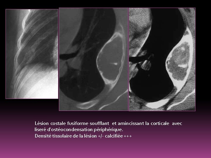 Lésion costale fusiforme soufflant et amincissant la corticale avec liseré d'ostéocondensation périphérique. Densité tissulaire