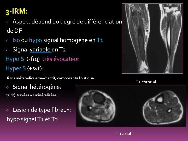 3 -IRM: Aspect dépend du degré de différenciation de DF ü Iso ou hypo