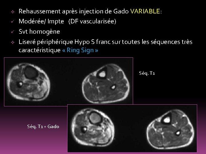 v ü ü v Rehaussement après injection de Gado VARIABLE: Modérée/ Impte (DF vascularisée)