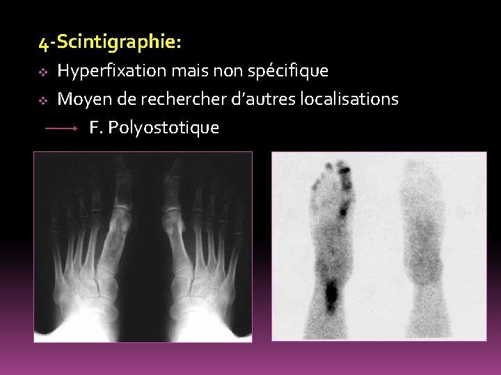 4 -Scintigraphie: Hyperfixation mais non spécifique v Moyen de recher d'autres localisations F. Polyostotique