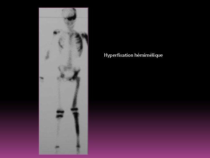 Hyperfixation hémimélique