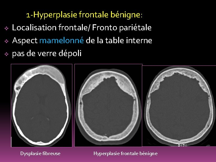 v v v 1 -Hyperplasie frontale bénigne: Localisation frontale/ Fronto pariétale Aspect mamelonné de
