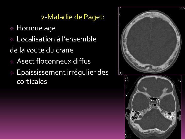 2 -Maladie de Paget: v Homme agé v Localisation à l'ensemble de la voute