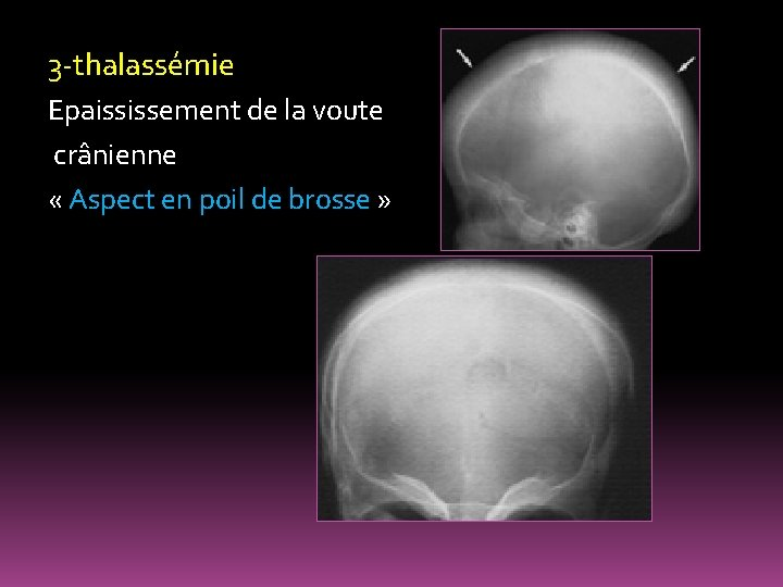 3 -thalassémie Epaississement de la voute crânienne « Aspect en poil de brosse »