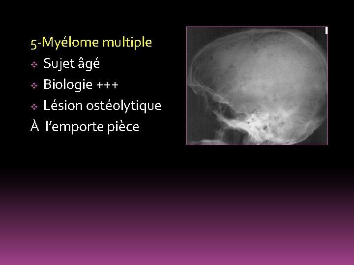 5 -Myélome multiple v Sujet âgé v Biologie +++ v Lésion ostéolytique À l'emporte