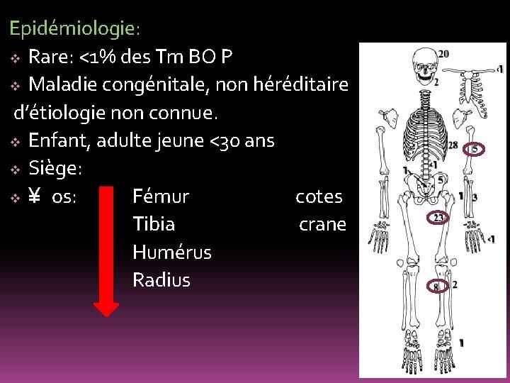 Epidémiologie: v Rare: <1% des Tm BO P v Maladie congénitale, non héréditaire d'étiologie