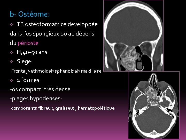 b- Ostéome: TB ostéoformatrice developpée dans l'os spongieux ou au dépens du périoste v