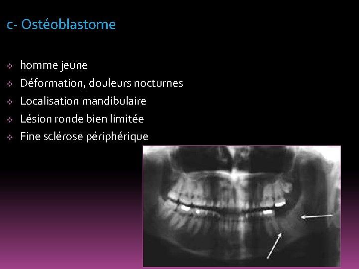 c- Ostéoblastome v v v homme jeune Déformation, douleurs nocturnes Localisation mandibulaire Lésion ronde