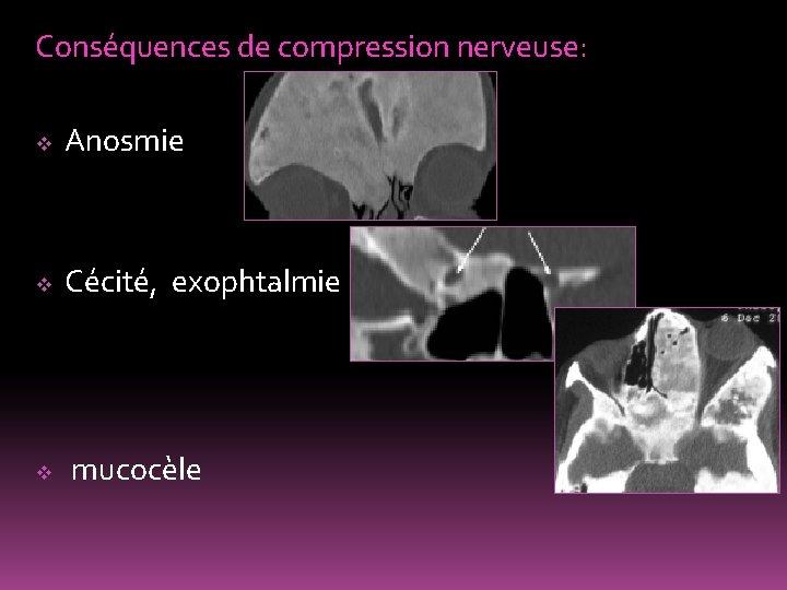 Conséquences de compression nerveuse: v Anosmie v Cécité, exophtalmie v mucocèle